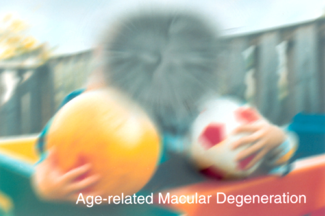 Advanced AMD causes loss of the central vision. Courtesy NEI-NIH.