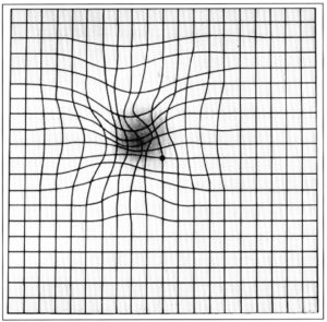 Amsler Grid Distortion, NEI