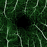 Fluorescein-angiogram-of-the-normal-capillary-free-zone-of-the-macula-surrounded-by-tiny-capillaries-in-the-normal-eye.