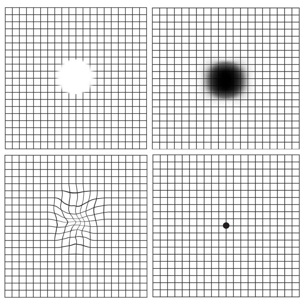 Amsler grid showing different effects from macular degeneration on vision