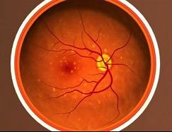 Age Related Macular Degeneration Amd Retina Group Of New York
